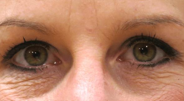 Augenregion