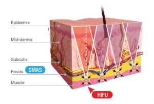 Facelift bei Hängebacken durch HIFU